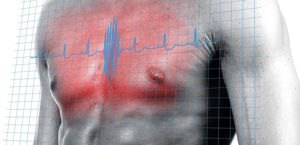 Witamina D3 istotny składnik organizmu zmniejszający ryzyko chorób kardiologicznych nawet o81%.