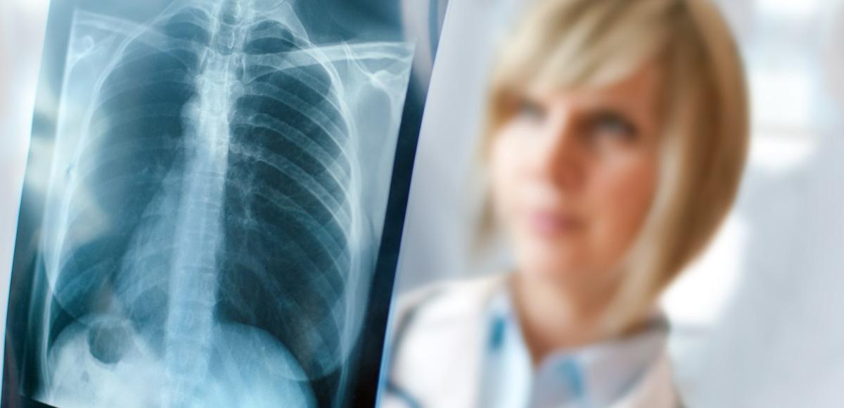 2.4g EPA iDHA omega-3 zwiększa o60% skuteczność chemioterapii uosób znowotworem płuc.