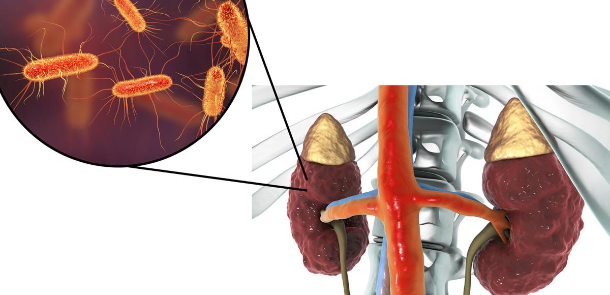 2000IU witaminy D3 chroni układ moczowy przedinwazją chorobotwórczych drobnoustrojów.